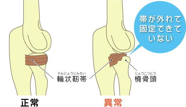 子どもの肘内障(肘が外れた)治療なら - 手塚接骨院(練馬区)